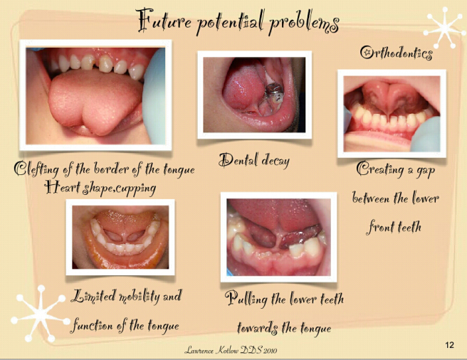 potential-problem-dari-tongue-tie